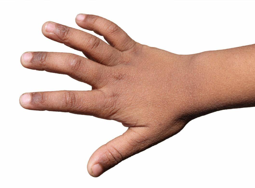 Hånd-med-utslett